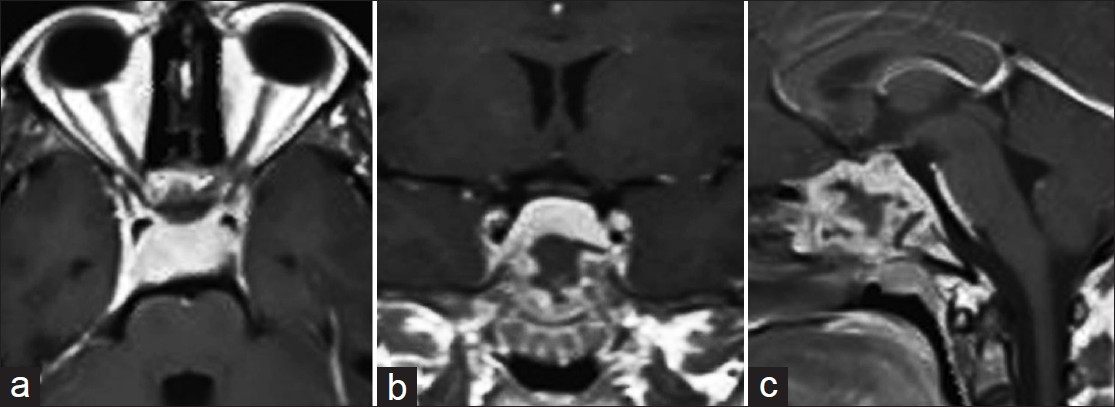 Figure 1: (a) Axial, (b) coronal, and (c) sagittal gadolinium - enhanced MRI showing a heterogeneously enhancing lesion in the sphenoid sinus