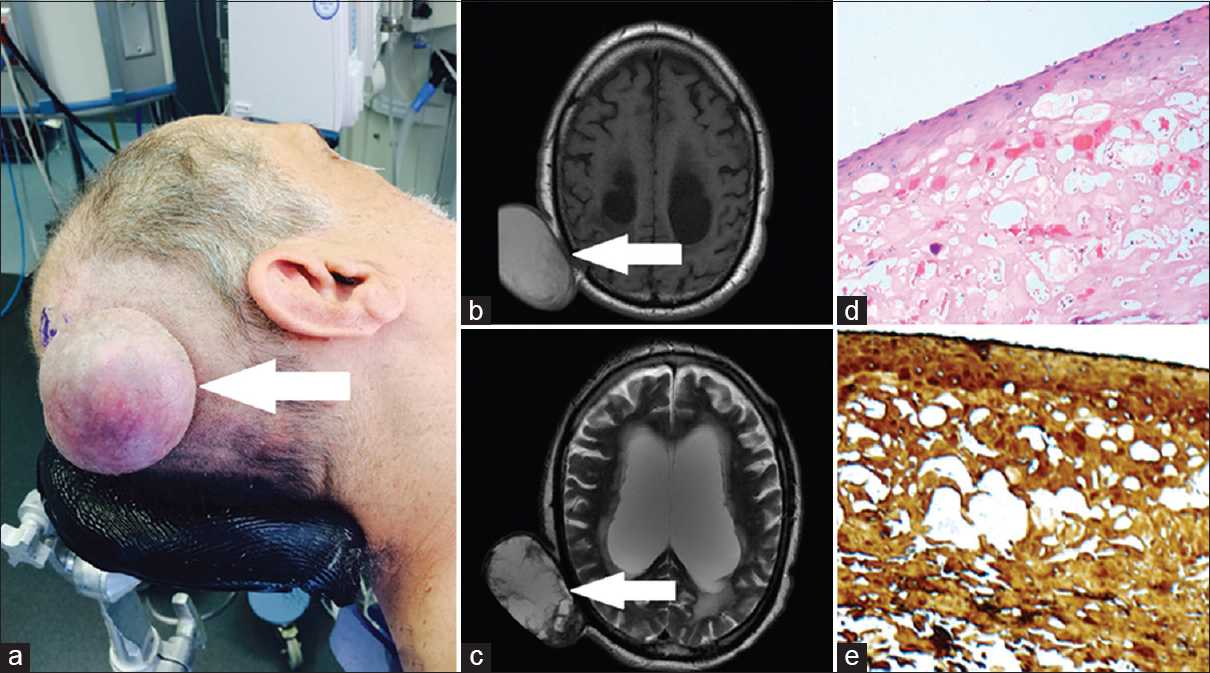 Figure 1: Clinical photograph (a) demonstrating a large, round scalp mass measuring 7.4 × 5.0 × 4.0 cm; T1-weighted (b) and T2-weighted (c) MRI of the brain demonstrating a round, well-defined, hyperintense lesion; histopathological images (d: ×200, H and E; and e: ×200, CK8/18) showing the stratified squamous epithelium lining with a lack of granular layer characteristic of a trichilemmal cyst