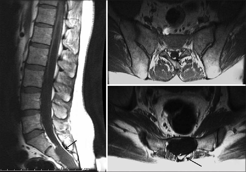 Occult Sacral Meningocoele Associated With Spinal Dysraphism Report Of An Unusual Case And A Review Of Literature The filum terminale is the end of the spinal cord. occult sacral meningocoele associated