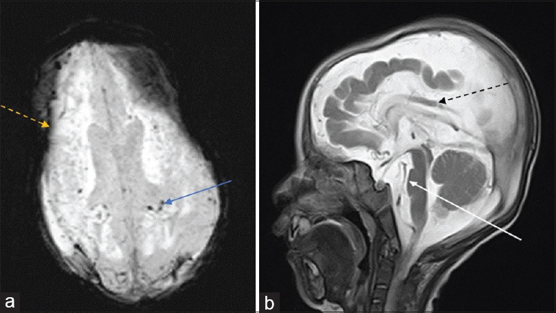 Figure 2:  Axial susceptibility weighted images showing multiple foci of blooming suggestive of micro bleeds (blue arrow) (a). Hemosiderine staining is seen around the bilateral fronto-parietal subdural collection (dotted orange arrow); T2W sagittal image showing brainstem atrophy in the form of flattening of the pons (white arrow). In addition, dysgenetic, thinned out and hyperintense corpus callosum is seen. (dotted black arrow) (b)