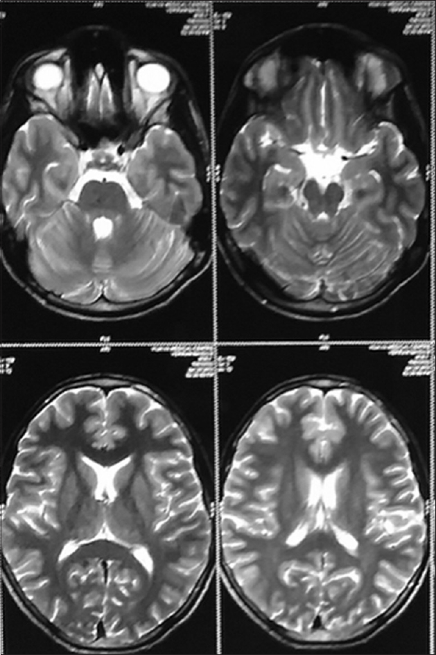 Figure 3: Magnetic resonance imaging scan of the brain