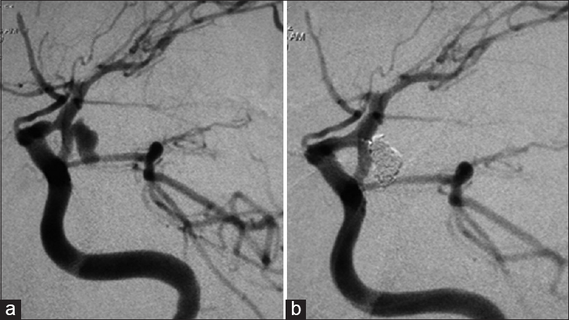 Figure 2: (a) Preoperative DSA of the left ICA shows an irregular true PCoA aneurysm with several potential bled points. (b) Postoperative DSA shows complete occlusion of the aneurysm with patent PCoA