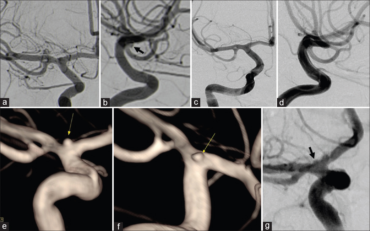 Figure 2: 2D digital subtraction angiography (2D-DSA) was repeated after 28 days which showed no aneurysm detected on posterior anterior (PA) projection (a) however small aneurysmal bleb (arrow) identified at right ICA bifurcation on lateral projection (b). Repeat angiography was done after 2 weeks, 2D-DSA (PA and lateral projection) showed no evidence of aneurysm (c, d). 3-Dimensional rotational angiography showed a very small aneurysm (arrow) arising from the ICA bifurcation (e, f). 2-Dimensional Angiography right oblique caudal projection showed a very small aneurysmal bleb (g)